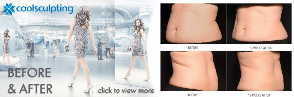 coolsculpting before and after view more