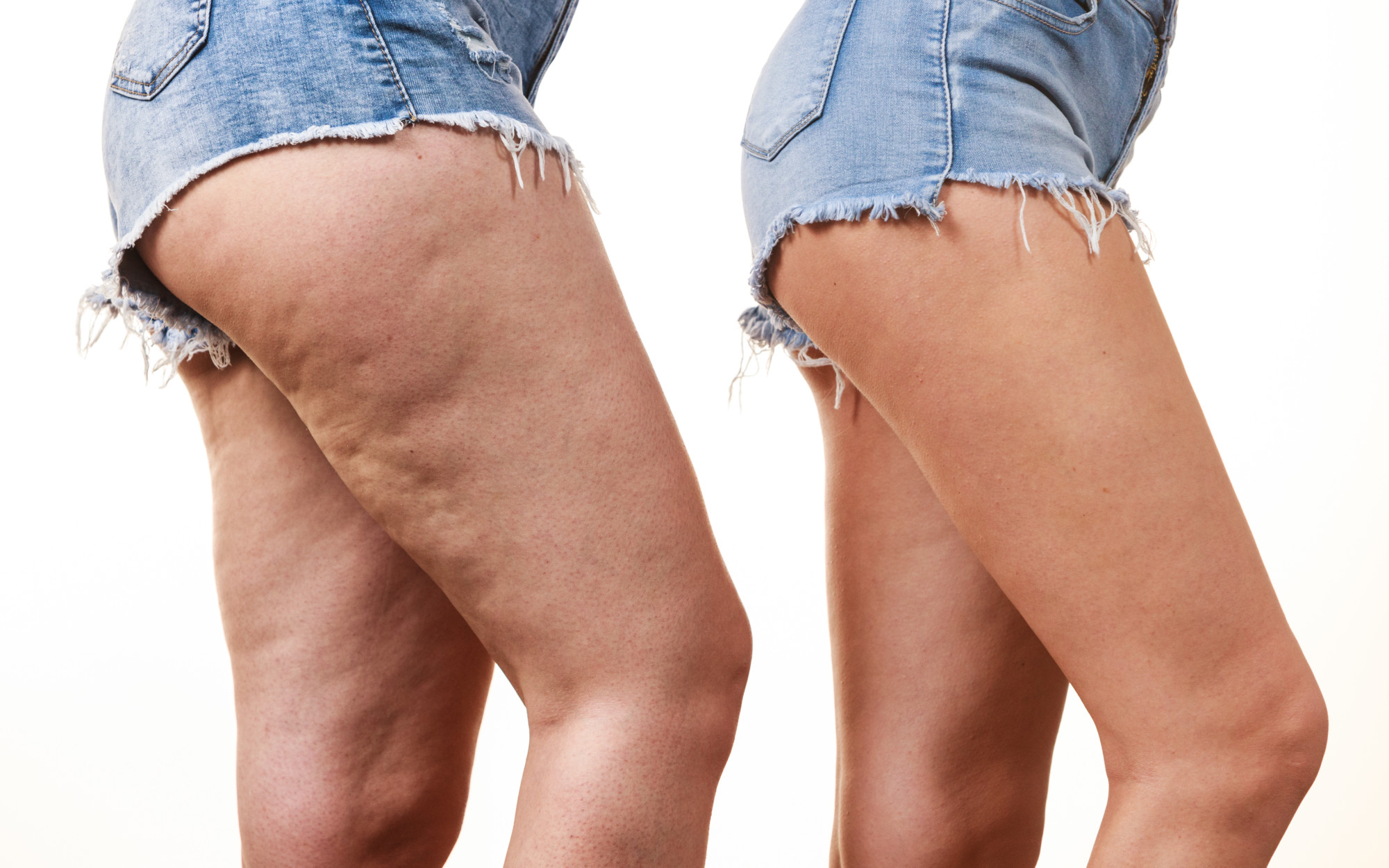 Does Coolsculpting Work On Cellulite Mybotoxla Blog