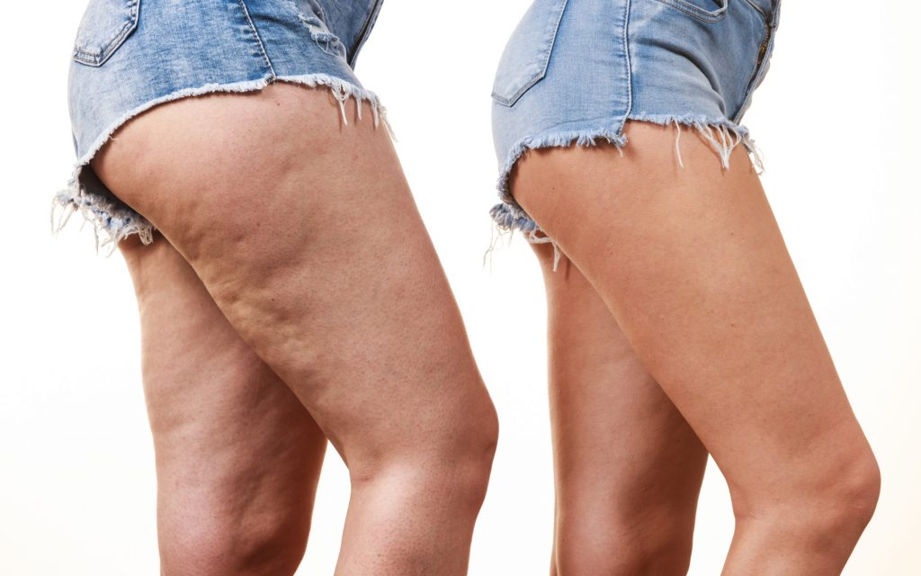 coolsculpting cellulite