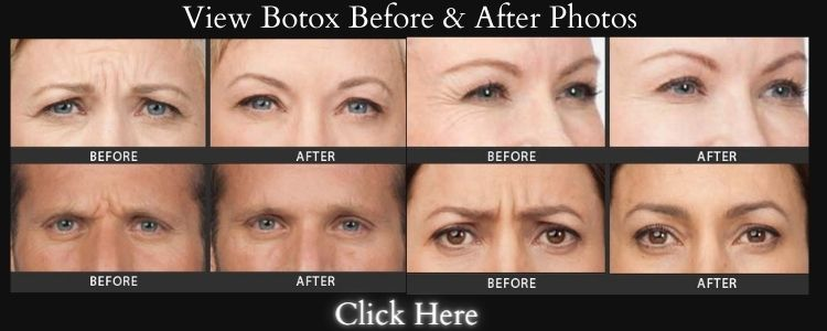 Botox Los Angeles Before & After Photos