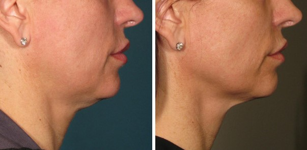 ultherapy before and after 360days jowels