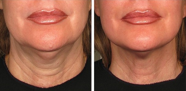 ultherapy before and after 90days neck