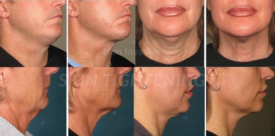 Non Invasive Skin Tightening Los Angeles