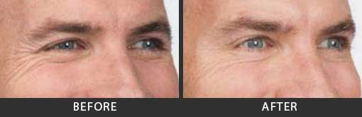 Botox Crows Feet Treatment Men