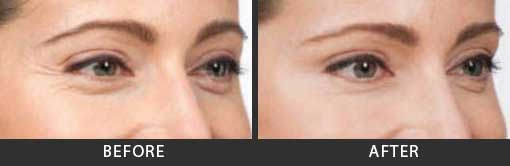 Botox Crows Feet Treatment