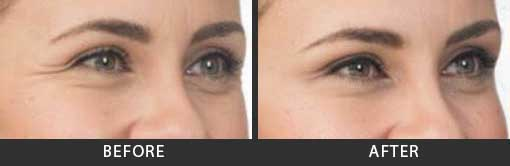 Botox Crows Feet Treatment Woman