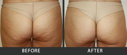 Cellulite Treatment Before and After Photo