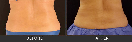 CoolSculpting Studio City