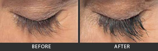 Latisse Eyelashes Before and After Photo