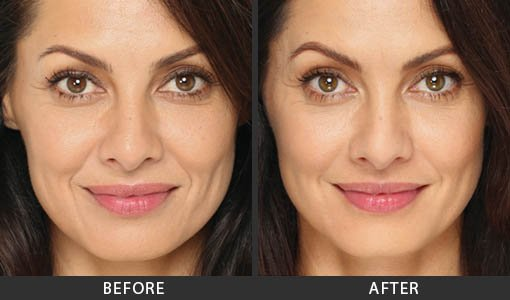 Radiesse Los Angeles | Radiesse Filler Injections in Studio City