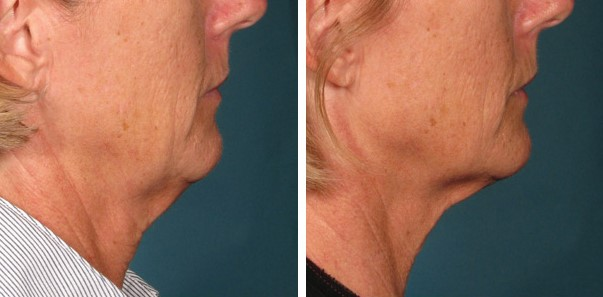 Kybella Double Chin Treatment