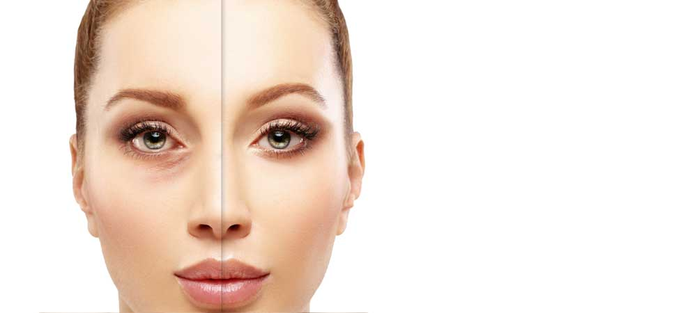 Under Eye Filler Treatments in Los Angeles, CA