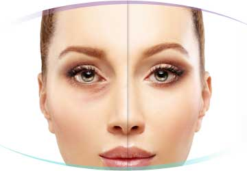 Under Eye Filler Treatments in Los Angeles, CA